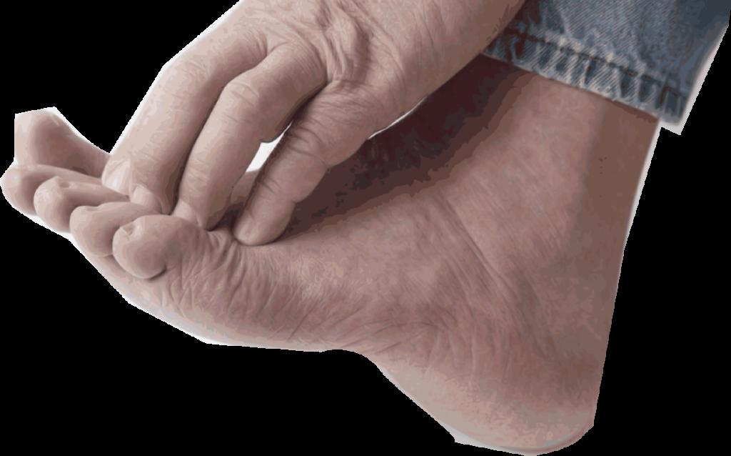 atheletes-Foot-fox-podiatry