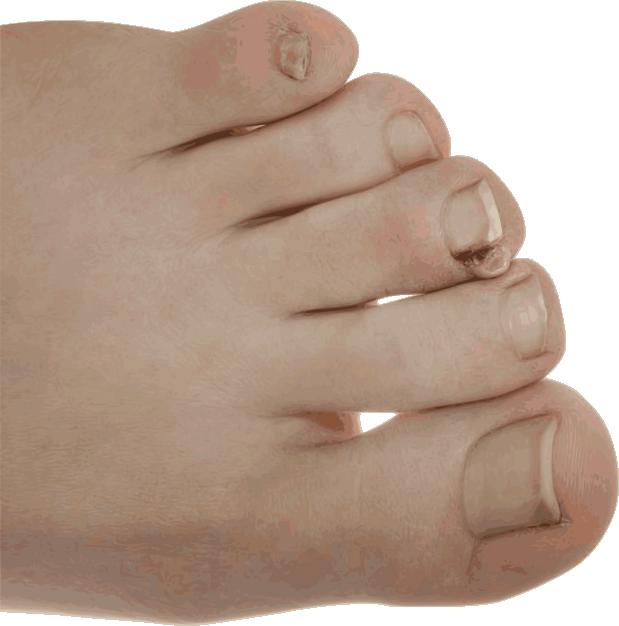 fox-podiatry-ingrown-toenail