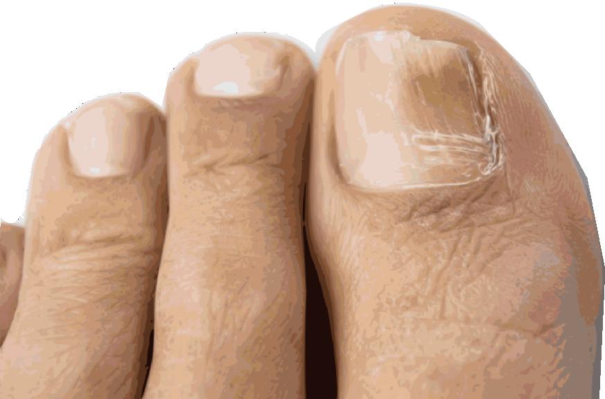 fox-podiatry-toenail-fungus